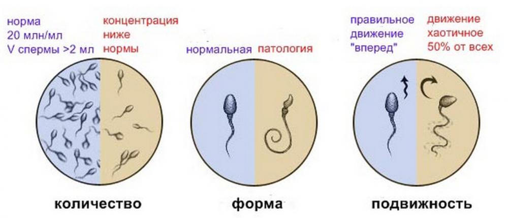 Морфология сперматозоидов: анализ спермы, норма спермограммы по ...