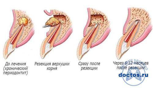Этапы лечения кисты зуба