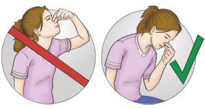 положение при носовом кровотечении