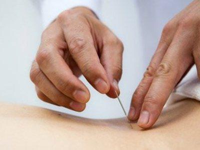 положение тела при иглоукалывании для потенции