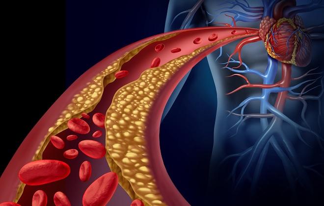 Закупорка кровеносных сосудов бляшками