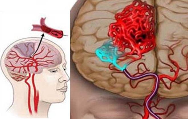 Первопричиной инсульта стало тромбирование вен головного мозга