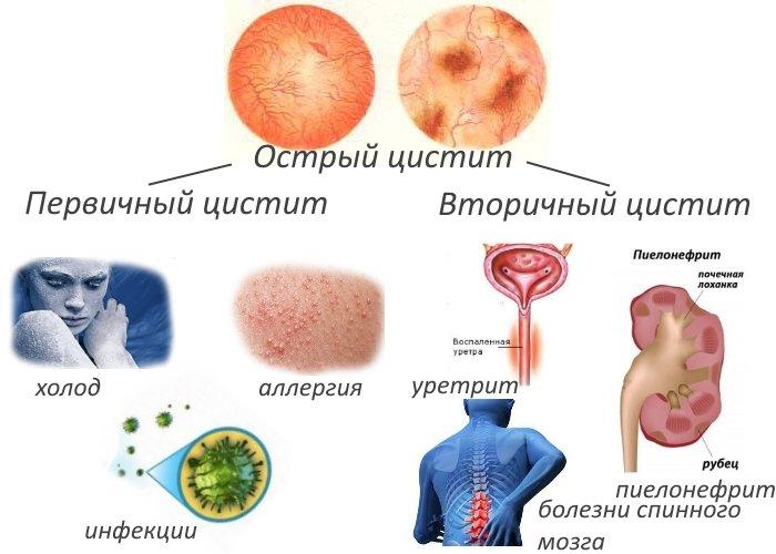Диагностика цистита у женщин, анализы