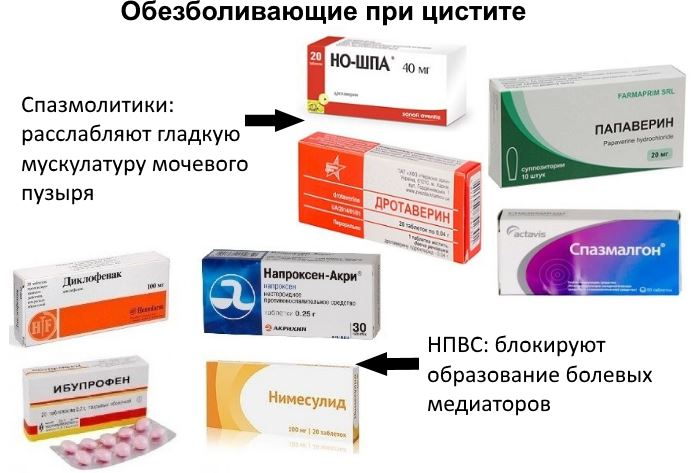Обезболивающее при цистите у женщин: обезболивающие препараты ...