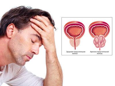 проблемы с простатой у мужчин симптомы