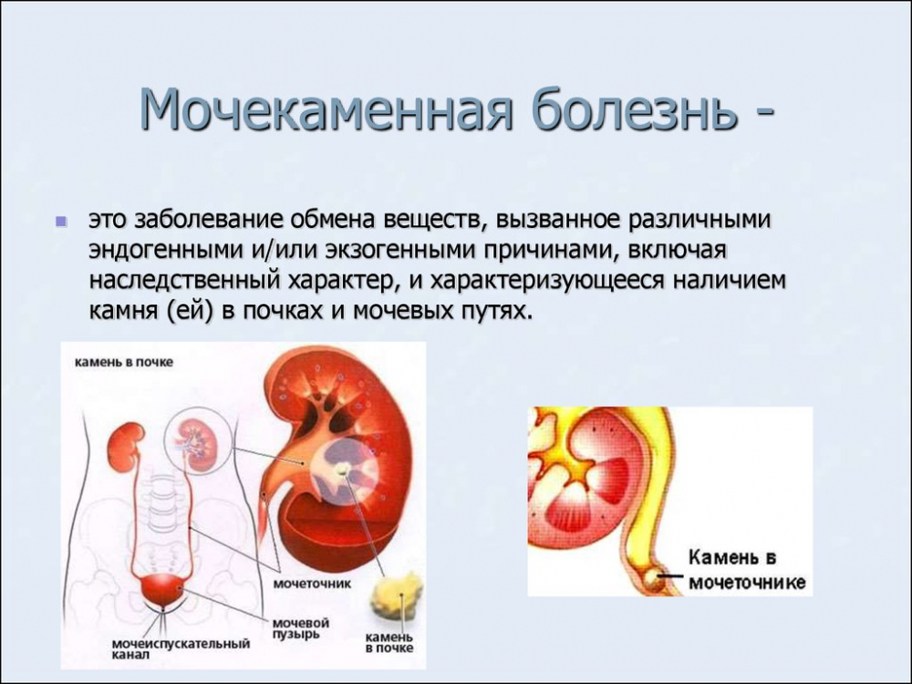 Мочекаменная болезнь - MedExplorer - информационный сайт о ...
