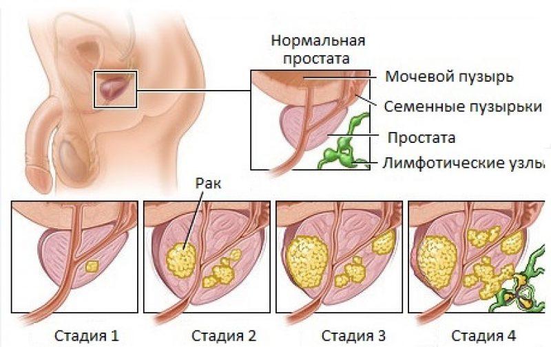 Степени рака простаты