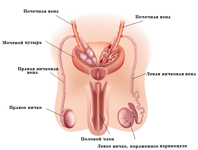 Наглядные признаки варикоцеле у мужчин