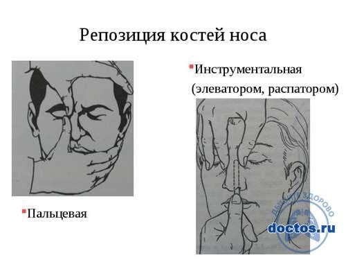 Вправление носа