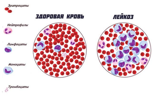 Разница крови здорового человека и заболевшего лейкозом