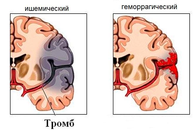 Отличие между видами инсультов