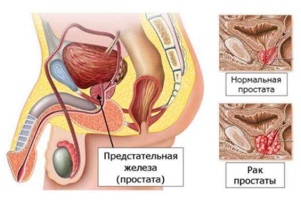заболевание рак простаты