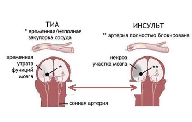 Сравнение транзиторной атаки с инсультом