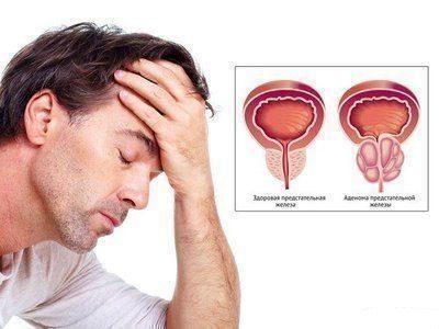 фитокомплекс для предстательной железы