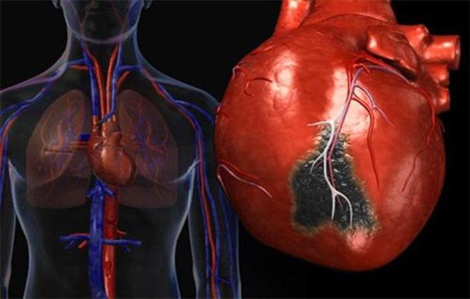 Абдоминальная форма инфаркта