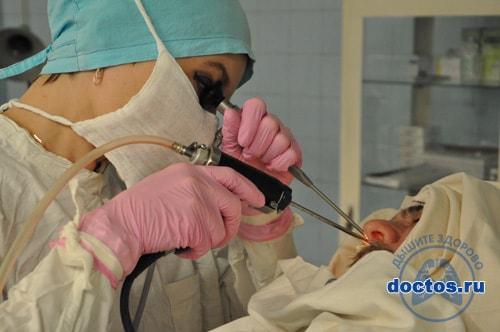 Удаление полипов в носу с помощью шейвера