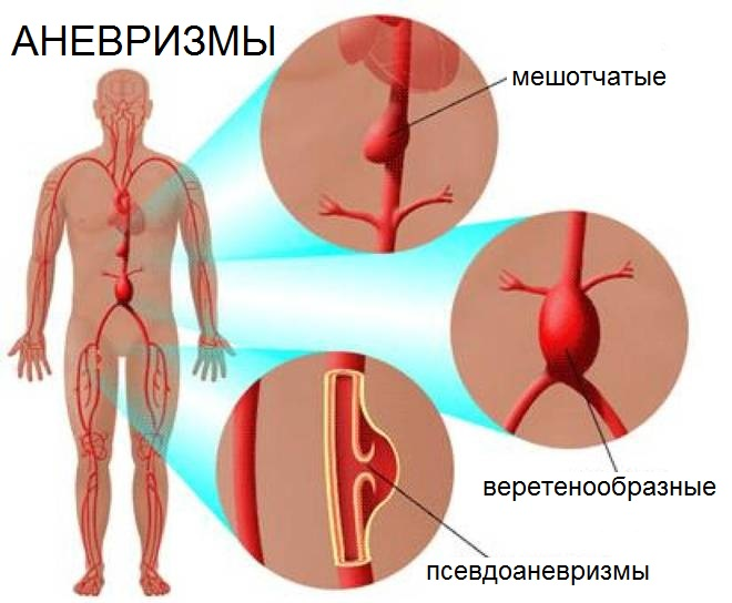 Разновидности аневризм человеческого тела