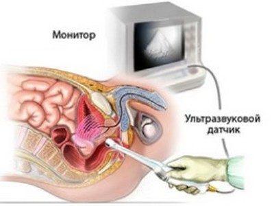 нодозная гиперплазия предстательной железы что это