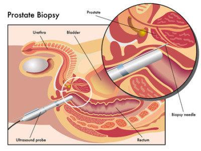 осложнения при пункции предстательной железы