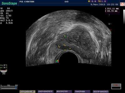 предстательная железа трансабдоминальное