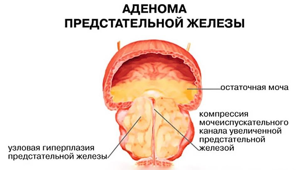 Аденома простаты: причины, симптомы, лечение, в т.ч. операция