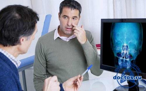 Пациент обсуждает с врачом свою рентгенографию